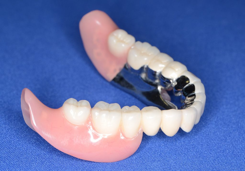 40代の女性にセットしたテレスコープ入れ歯