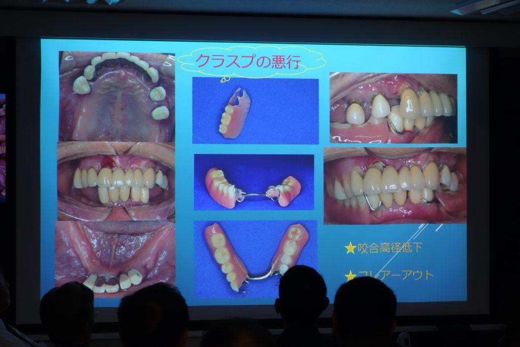 クラスプの入れ歯
