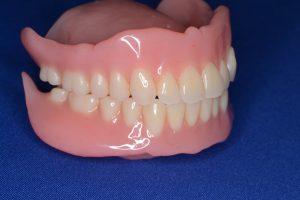 完成した総入れ歯3