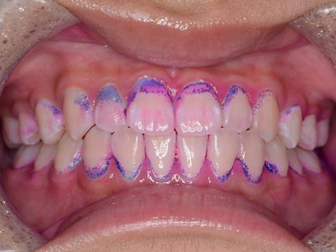 歯垢染色の写真