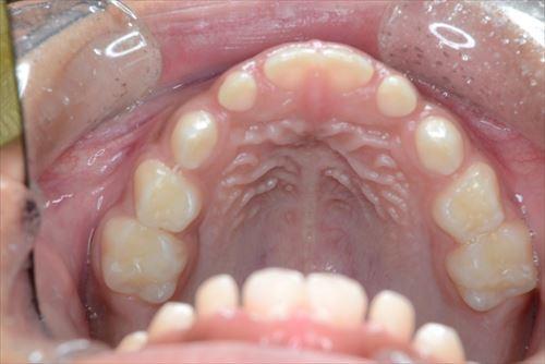 前歯が前に出てしまう、いわゆる出っ歯の状態
