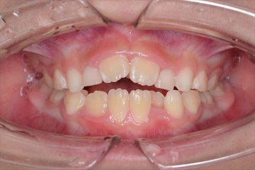 前歯にできた空間に舌を突っ込み、嚥下する