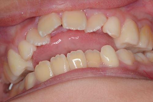 前歯にできた空間に舌を突っ込み、嚥下する2