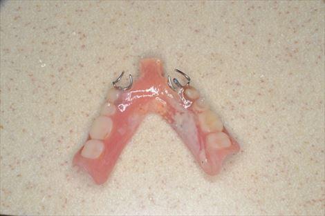 入れ歯の清掃もしっかりと