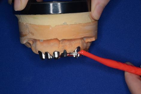 歯の間や細かいところは歯間ブラシを使う