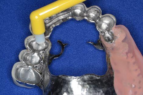 入れ歯の内冠にはタフトブラシを使う
