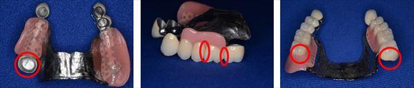 入れ歯で最近がつきやすい箇所