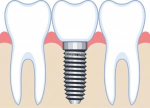 implant-illust