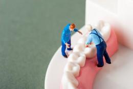 入れ歯になってしまう原因
