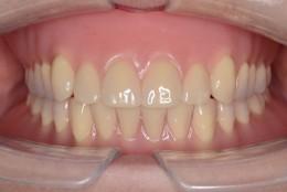 噛める入れ歯と噛めない入れ歯の違い